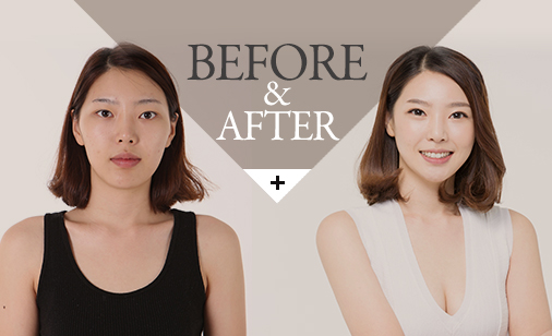 before&after바로가기